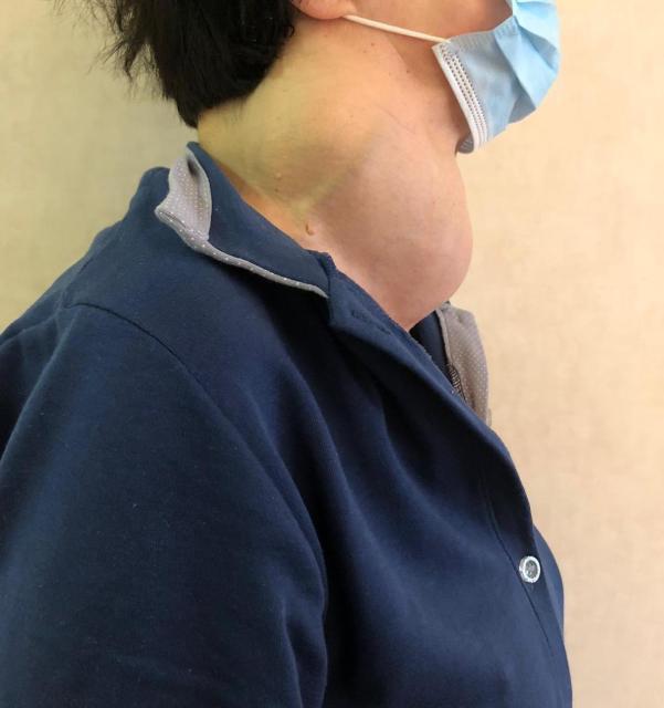 Tumore raro alla tiroide, intervento salvavita su una paziente di 65 anni