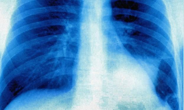 Passo avanti del Cnr per trattare il tumore al polmone