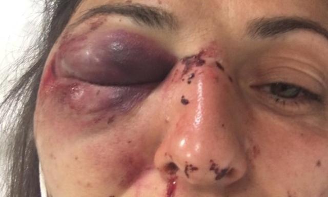 """I No Tav accusano: """"Manifestante gravemente ferita da un lacrimogeno"""". La Polizia: """"È falso"""""""